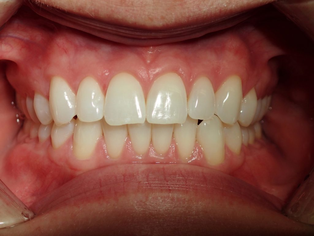 misaligned teeth before invisalign treatment